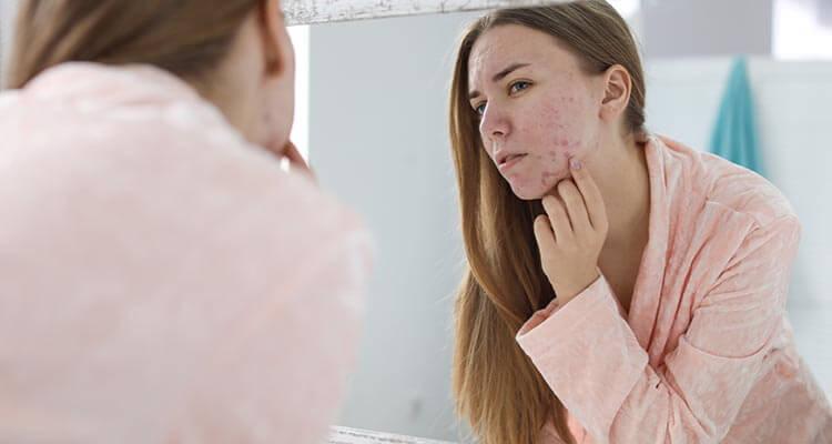 Cebula na trądzik i zmarszczki - właściwości lecznicze