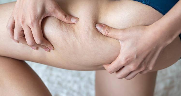 Jak schudnąć z ud i pośladków